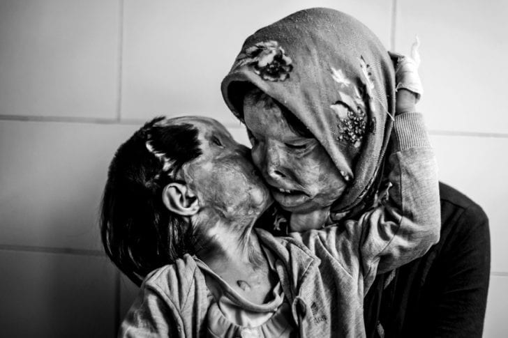 A mother and her 3 year-old daughter, who were attacked with acid by her husband